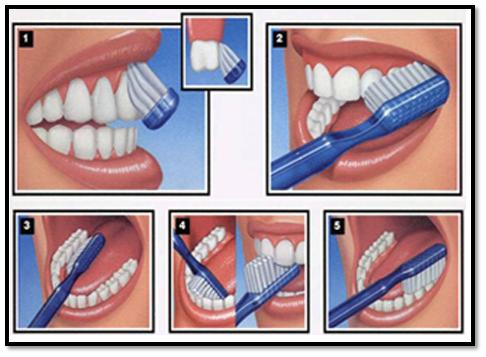 Importance of Brushing Technique